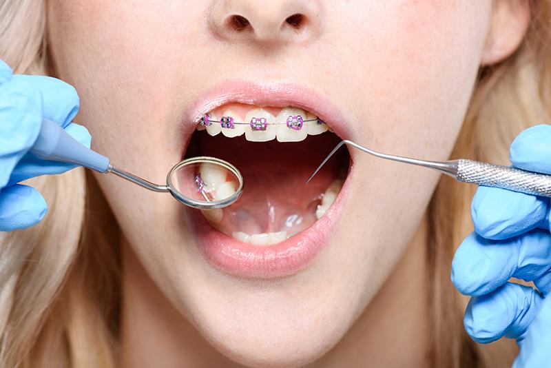 orthodontics-image1