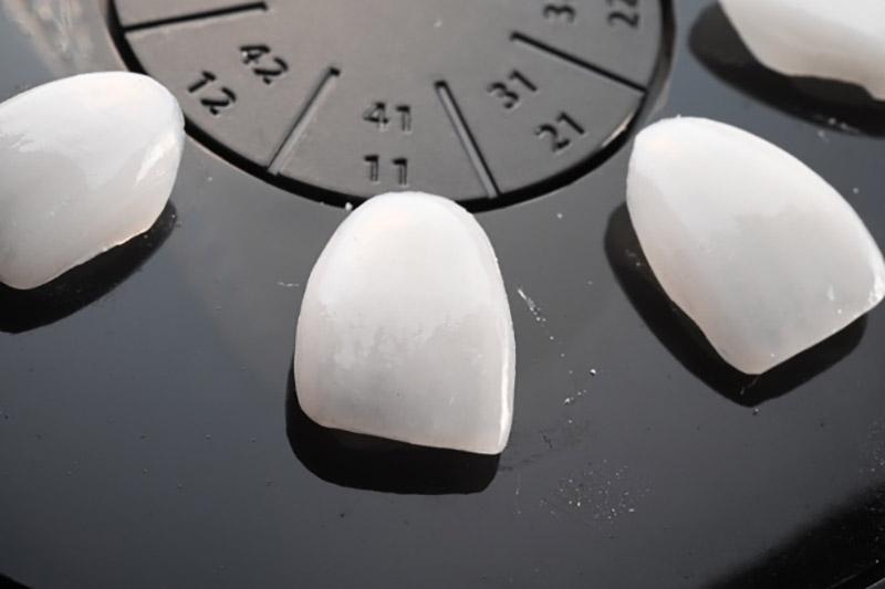 美齒陶瓷貼片的好處?聽說做陶瓷貼片牙縫問題就可以解決